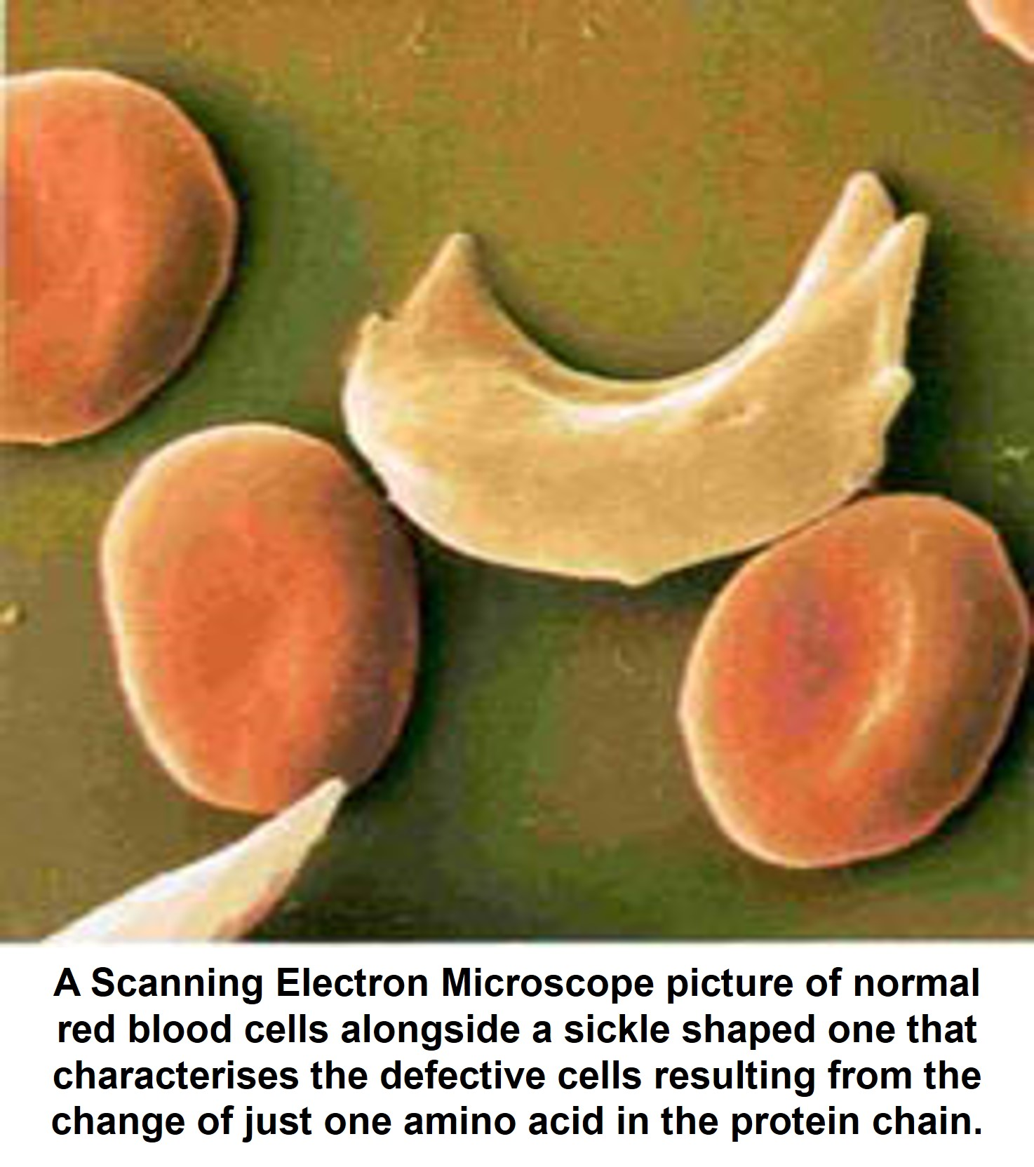 Scanning Electron Microscope of normal red blood cells